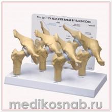 Модель дегенеративных заболеваний костей тазобедренного сустава (4 стадии)