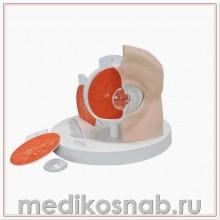 Модель глаза с патологиями, 5 кратное увеличение