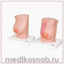 Модель молочной железы