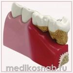 Модель зубов