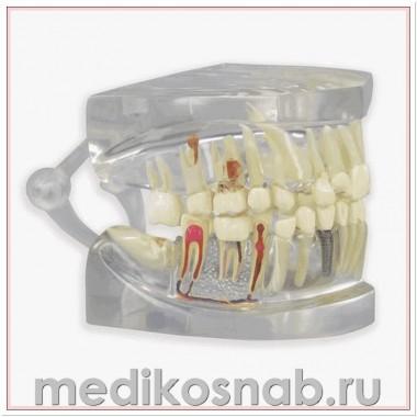 Прозрачная модель челюсти человека с зубами