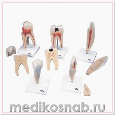 Серия классических моделей зуба