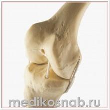 Левое колено ORTHObones Стандарт