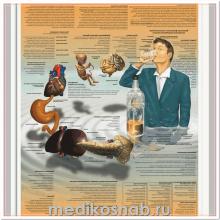 Плакат медицинский Алкогольная зависимость