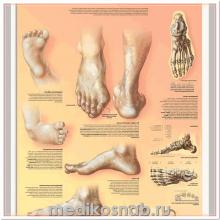 Плакат медицинский Деформация стопы