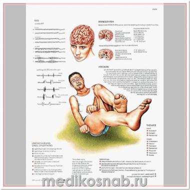 Плакат медицинский Epilessia