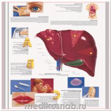 Плакат медицинский Гепатит