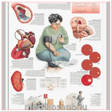 Плакат медицинский Гипертензия