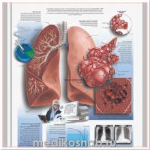 Плакат медицинский Холестерин