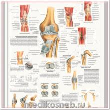 Плакат медицинский Коленный сустав