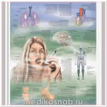 Плакат медицинский Никотиновая зависимость