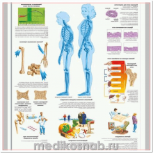 Плакат медицинский Остеопороз