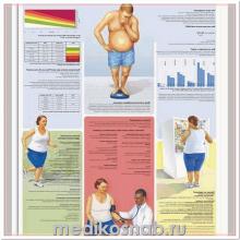 Плакат медицинский Ожирение