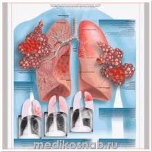 Плакат медицинский Пневмония
