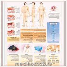 Плакат медицинский Пролежни