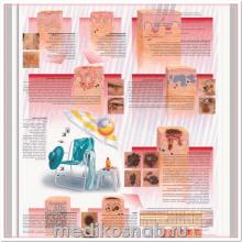 Плакат медицинский Рак кожи