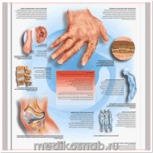 Плакат медицинский Ревматизм