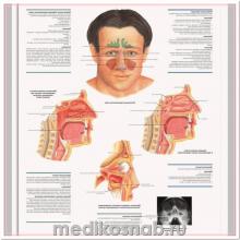 Плакат медицинский Ринит и синусит