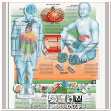 Плакат медицинский Сахарный диабет