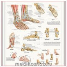 Плакат медицинский Стопа и суставы стопы, анатомия и патология