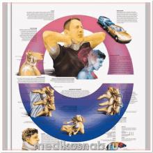 Плакат медицинский Травма ускорения шейного отдела позвоночника
