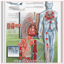 Плакат медицинский Тромбоз глубоких вен