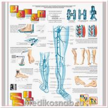 Плакат медицинский Варикозные вены
