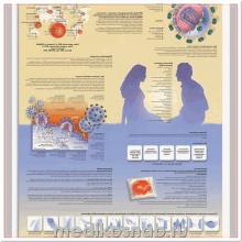 Плакат медицинский ВИЧ и СПИД