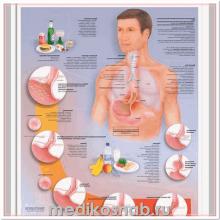 Плакат медицинский Желудочно-пищевой рефлюкс