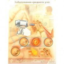 Заболевания среднего уха (плакат настенный ламинированный)