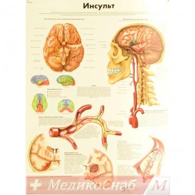 Инсульт (плакат настенный ламинированный)