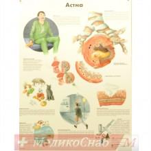Плакат бронхиальная астма