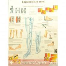 Варикозные вены (плакат настенный ламинированный)