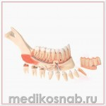 Усовершенствованная модель половины нижней челюсти с 8 больными зубами, 19 частей